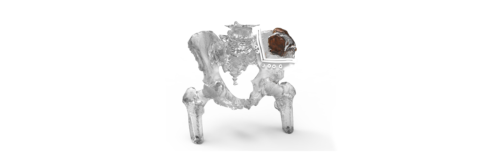 3d Systems Attains FDA Clearance For Virtual Surgical Planning Platform